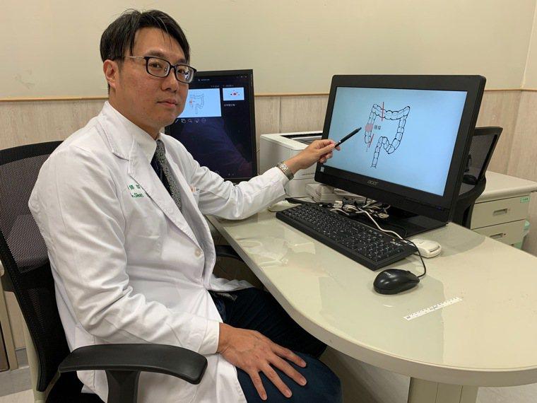大腸直腸科醫師邵彥誠以3D腹腔鏡手術,切除7x6.5x2公分腫瘤,讓男子順利於一...