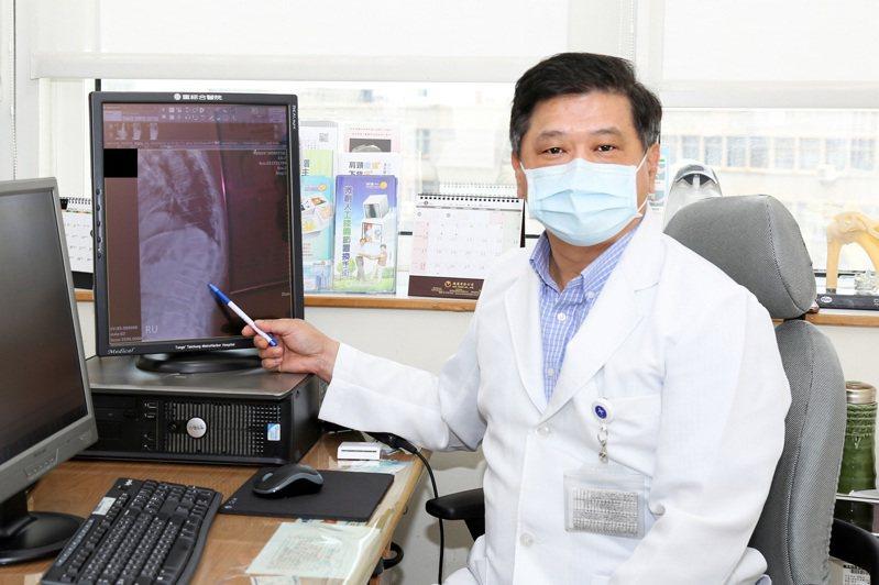徐少克醫師筆指處即為百歲翁腰椎第一、第二節椎體變形位置,此為術前照。圖/童綜合醫院提供