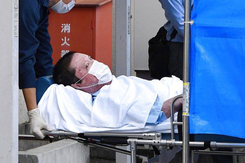 涉嫌燒死京都動畫36人的嫌犯青葉真司正式被捕,移送過程中可看見赤紅皮膚上的燒傷痕跡。 圖/美聯社