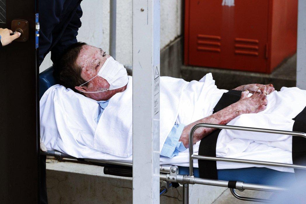 去年犯下「京阿尼縱火案」兇手青葉真司,因為犯案後自己也嚴重燒傷,在長期住院療養下...