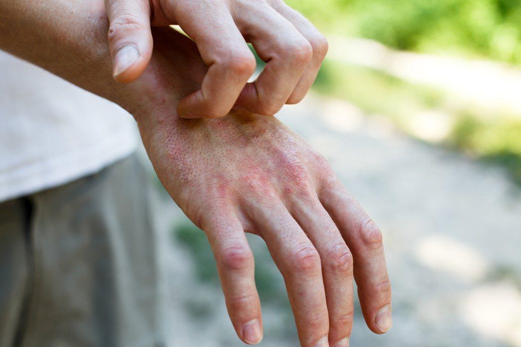 異位性皮膚炎患者臉上先出現紅腫、劇癢,再逐漸分布在手腕及腳後彎處,會反覆發作。圖...
