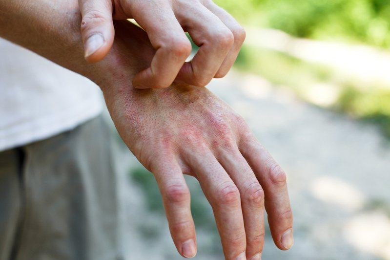 異位性皮膚炎患者臉上先出現紅腫、劇癢,再逐漸分布在手腕及腳後彎處,會反覆發作。圖/123RF