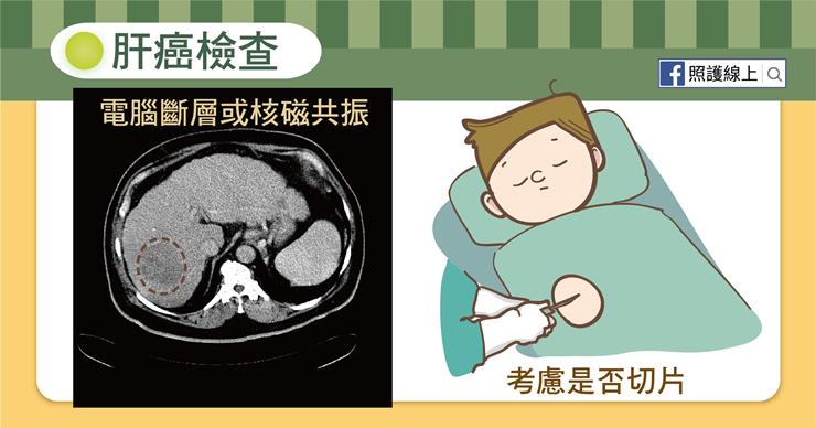 一般來說,定期腹部超音波檢查可以做為高危險群的第一線檢查,建議罹患B型肝炎者、C...