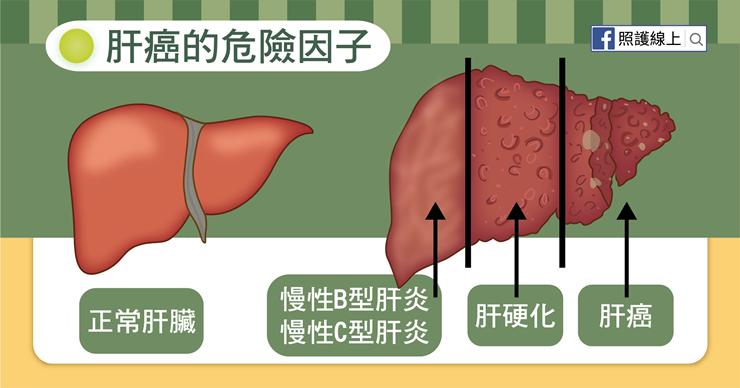 如果有肝癌的危險因子,你或許該定期接受腹部超音波健康檢查,以免已有肝臟腫瘤卻不知...