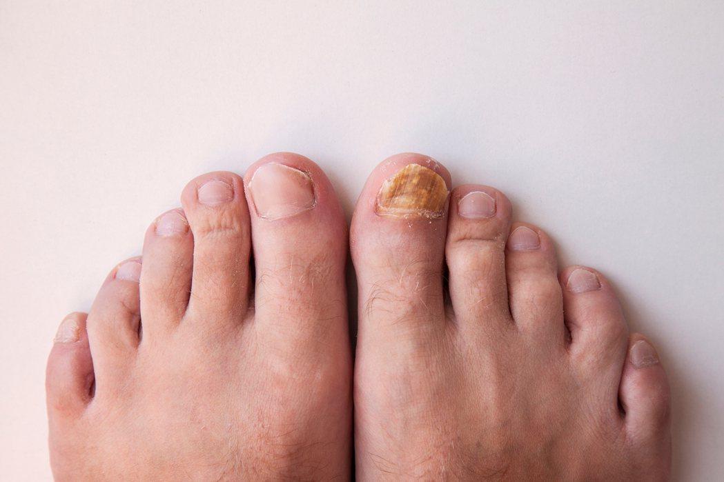 灰指甲不痛不癢,初期容易忽視警訊。 圖/聯合報系資料照