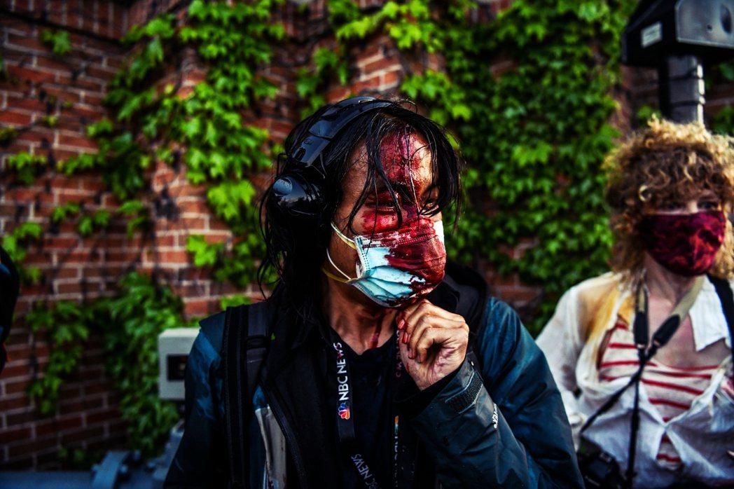 圖為5月30日,一名《NBC》記者在明州抗爭現場衝突中受傷,滿臉是血。 圖/法新...