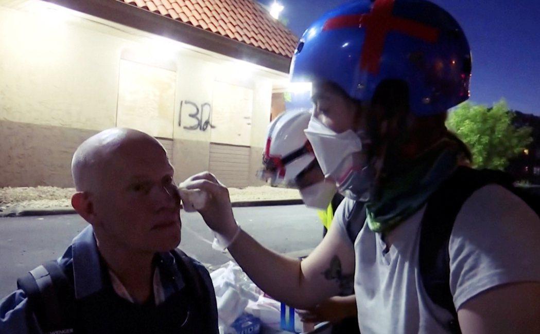 圖左為《路透社》攝影記者查維茲,混亂的過程裡,查維茲的臉部也遭到橡膠子彈擊傷;另...