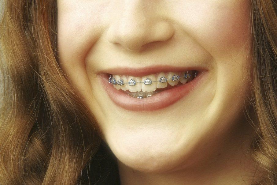 若牙齒咬合咀嚼受影響到影響進食消化、發音等,就有矯正的必要性;最好從小定期看牙醫...