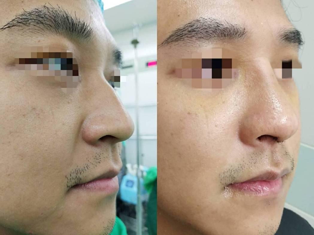 32歲顏先生長期有流鼻水、打噴嚏、鼻塞,甚至經常性流鼻水,不僅影響睡眠,甚至有記...