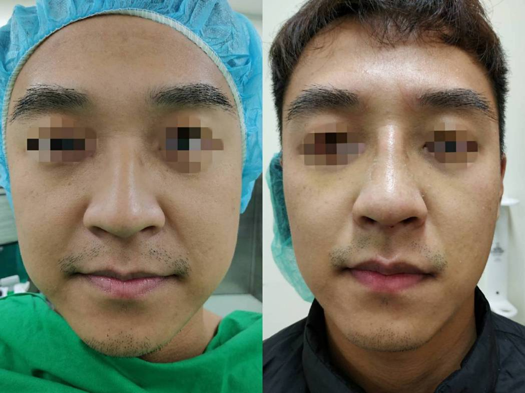 顏先生經過一次到位手術後,不但鼻中膈彎曲完整矯正,呼吸變順暢,不再有鼻塞流鼻水打...