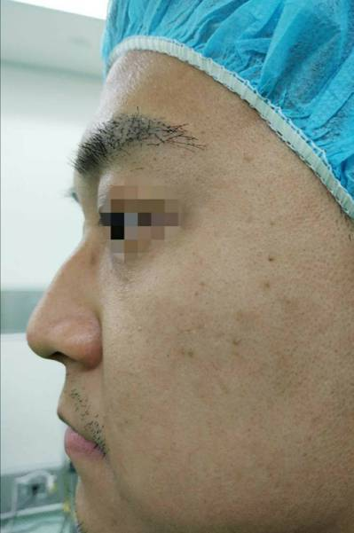 顏先生鼻中膈彎曲,出現明顯的鼻駝峰,接受手術矯正。圖/三總提供