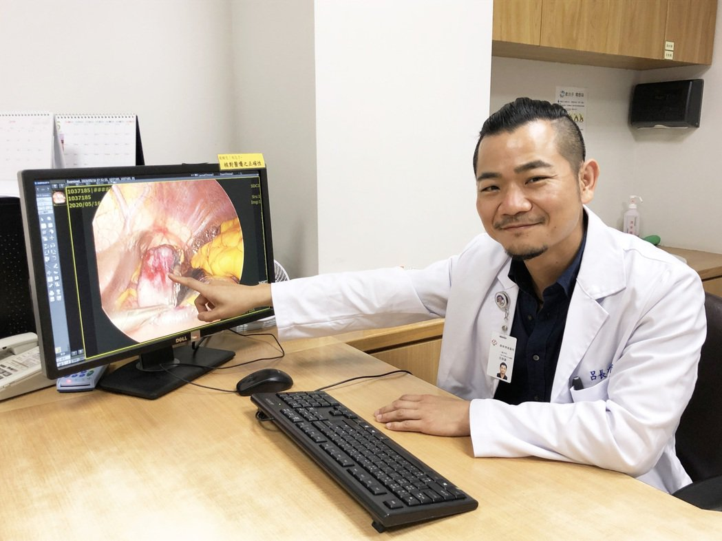 一名老翁診出罹患「胃腸道基質瘤」,及時手術摘除,羅東博愛醫院外科醫師呂長運提醒,...
