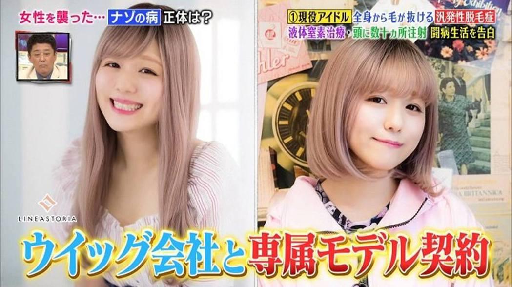 Pippi獲得假髮製作商的賞識,簽約成為模特兒,現今她會替該製作商拍攝不同的假髮...