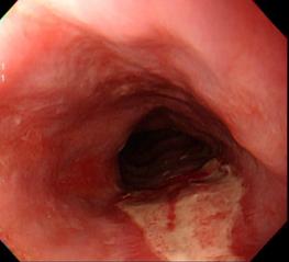52歲男子吃土司卡在食道造成大片潰瘍。圖/許秉毅醫師提供