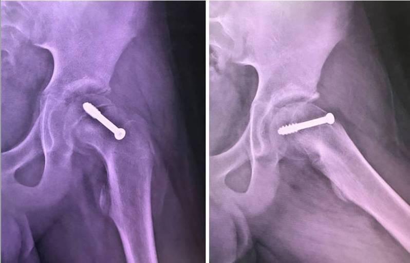 嘉義長庚外傷骨科主任沈世勛說明大腿骨的上骨骺板滑脫症治療方法,以電腦導航配合螺釘固定。圖 /嘉義長庚提供
