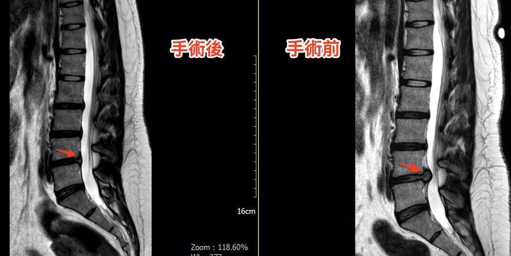 核磁共振(側面)可看出原本突出的椎間盤(右方紅色箭頭黑黑的凸出物), 手術後幾乎...