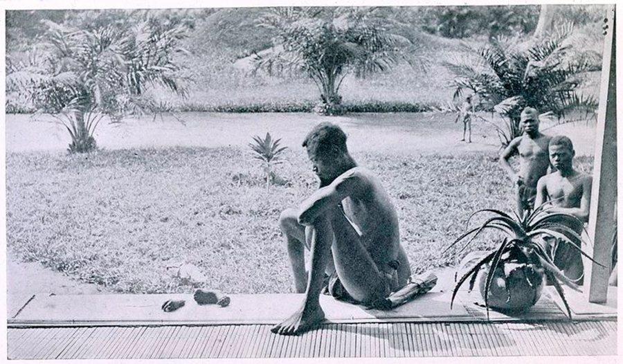 圖為一名剛果父親,看著自己5歲的女兒,被公安軍斬去一隻手與一隻腳,作為懲罰與警告...
