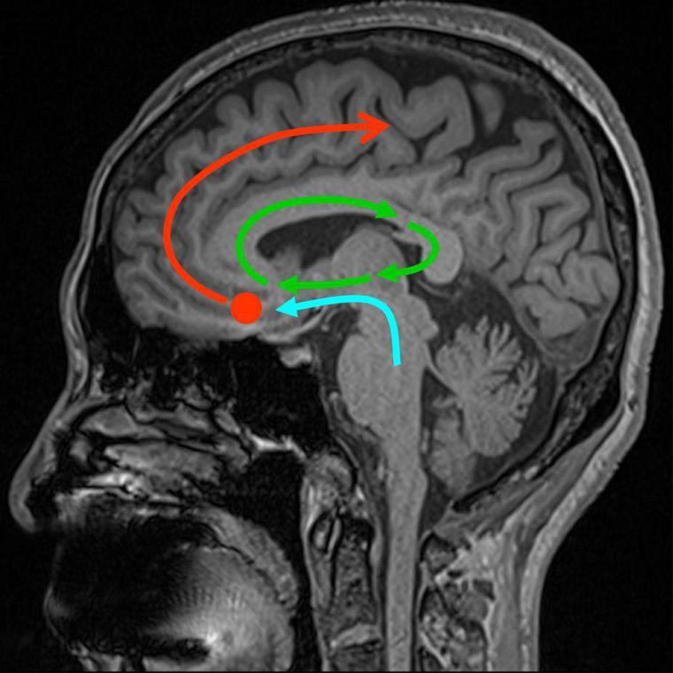 腦鳴在腦部形成的機轉路徑。青色線為腦幹聽覺神經路徑,綠色線為海馬迴中的成癮迴路,...