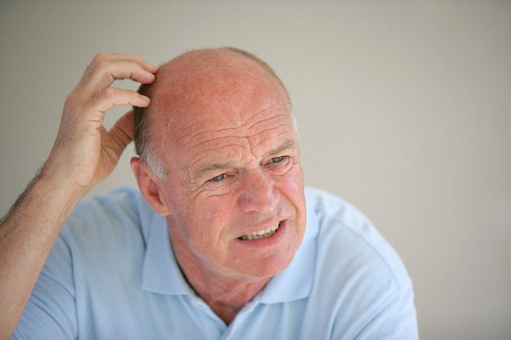 最新調查指出,具有男性型態性禿髮(male pattern baldness)的...