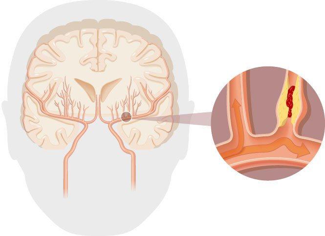小中風示意圖腦部小血管梗塞,血流無法順利通過,造成暫時性腦缺血。 圖/廖珮涵 繪...