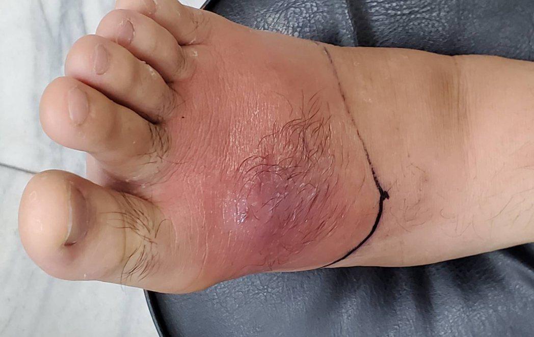 花蓮一名男子調養身體針灸,卻沒留意傷口清潔,腳背紅腫,引發蜂窩性組織炎。圖/門諾...