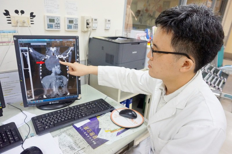 14歲國中少女患淋巴癌,電腦斷層影像可明顯看見胸部縱膈腔有一顆13.5公分的腫瘤(黃鼎煥手指與紅色箭頭處)。圖/新竹馬偕醫院提供