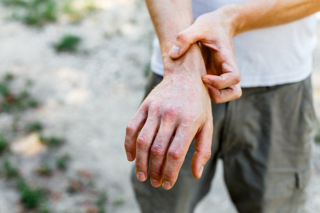異位性皮膚炎患者一旦發作,身體常會出現紅腫過敏、流膿等症狀,搔癢難耐,甚至影響工...