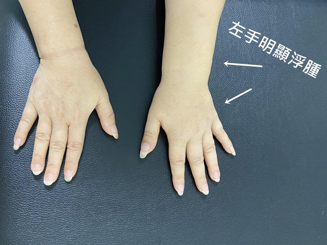 宜蘭一名婦人整隻手臂到手掌都呈現浮腫,既不能握,也無法活動,更痛到晚上睡覺都不安...
