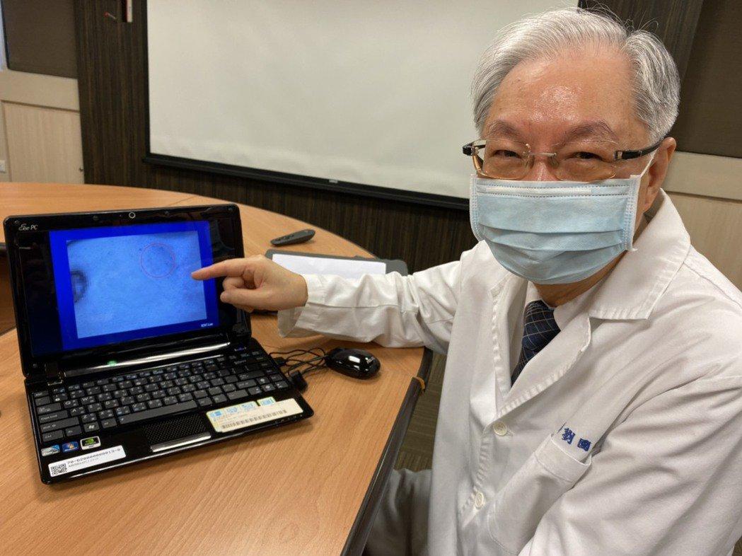 劉國威呼籲,乳房超音波屬非侵入檢查,對於乳房腫瘤的鑑別很有幫助,盡早就醫診斷,確...