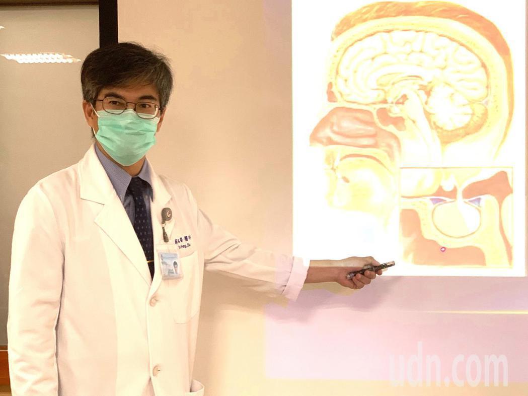 大同醫院神經外科主任蘇裕峰表示,腦下垂體位於大腦底部中央叫做「蝶鞍」的位置,為直...