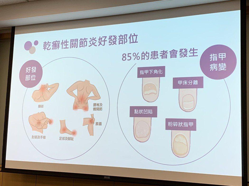 乾癬患者中約有3成會合併乾癬性關節炎,而好發部位以手部為最多。記者陳雨鑫...