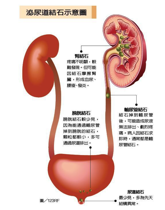 泌尿道結石示意圖 圖/123RF