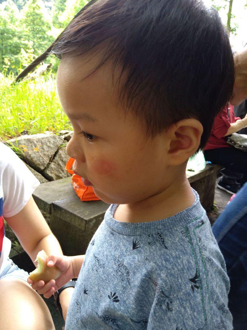 朋友的孫子被蚊子叮了,臉頰紅腫,媽媽馬上用藥膏塗抹,很快就消腫了。圖/盧正文提供