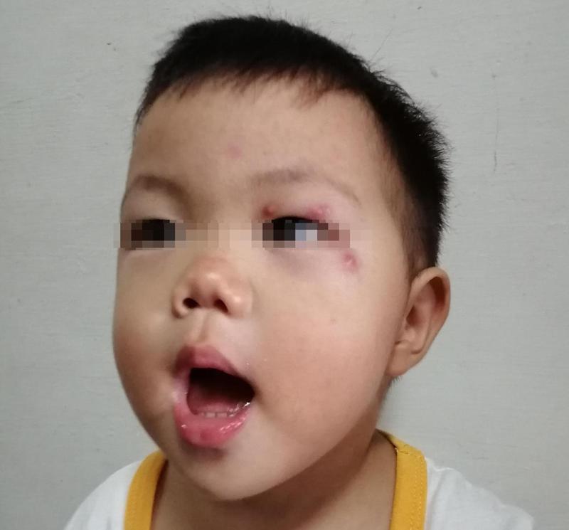 弟弟可能是吃完芒果臉部皮膚癢,用不乾淨的手抓臉,而導致「次發性毛囊炎」。圖/新竹馬偕醫院提供