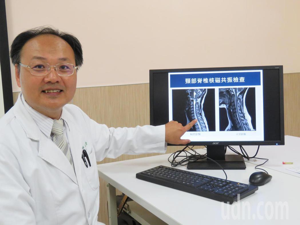 亞洲大學附屬醫院神經外科主任林志隆是國內脊髓空洞症的專家,目前已累積500多病例...