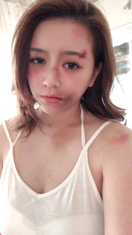 李妍瑾貼出這張滿臉是傷的照片把網友嚇壞。 圖/擷自李妍瑾臉書