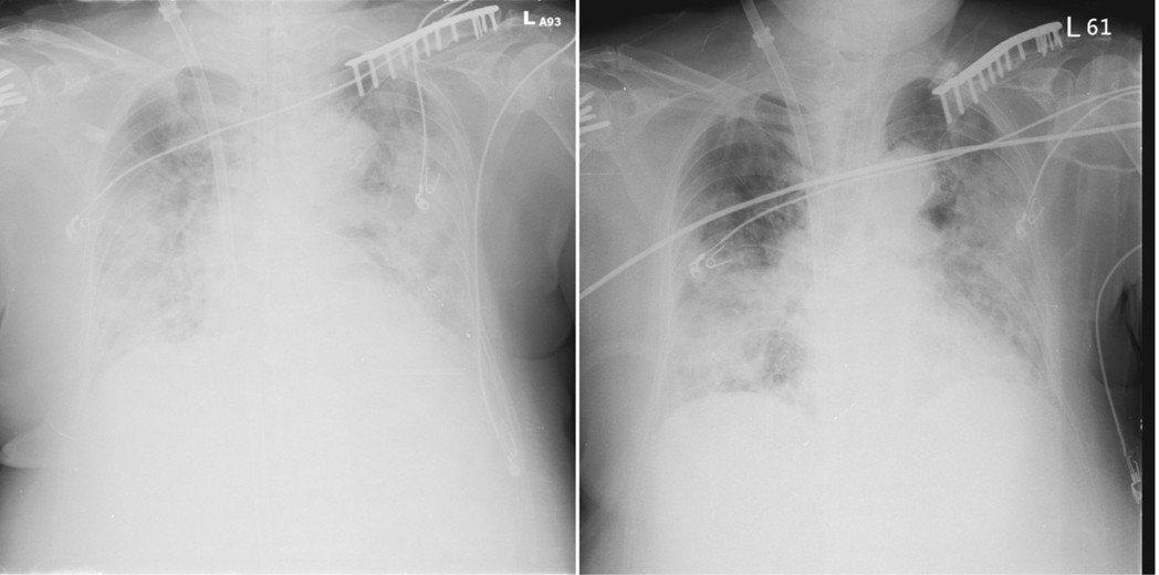 左為給藥前肺部狀況;右為給藥後肺部狀況,浸潤狀況改善許多。圖/北榮提供