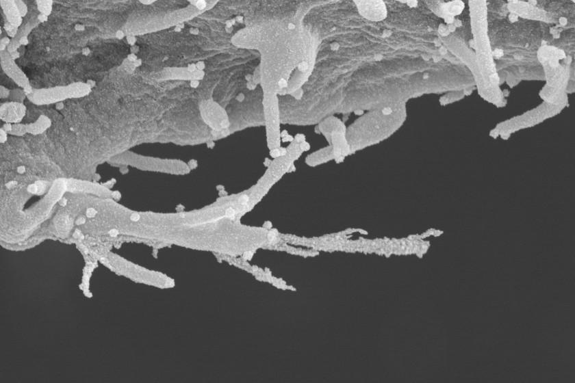 受新冠肺炎感染細胞長出「觸手」播毒 美研究員:非常邪惡