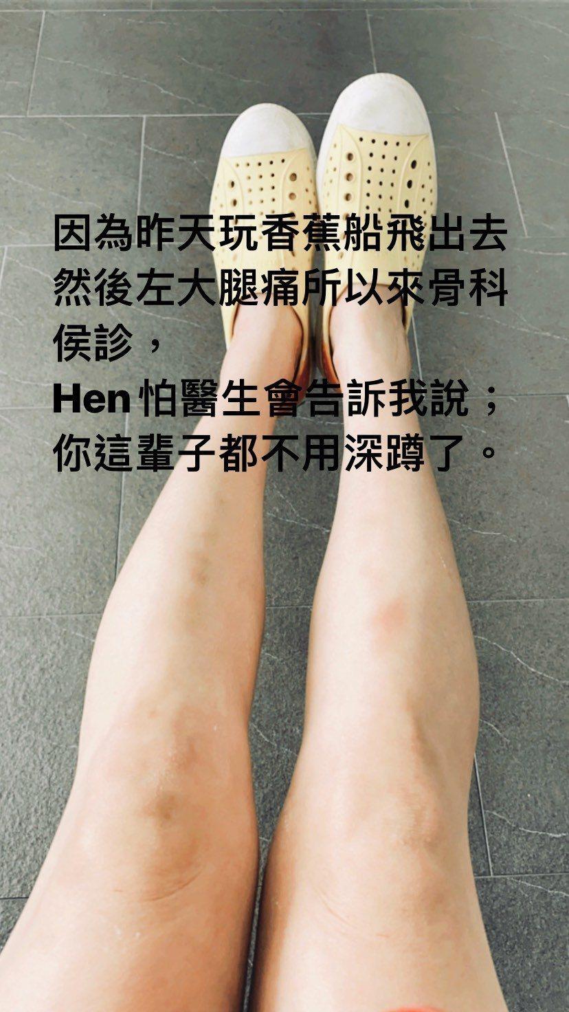 謝忻玩香蕉船後左大腿痛到骨科檢查。 圖/擷自謝忻IG