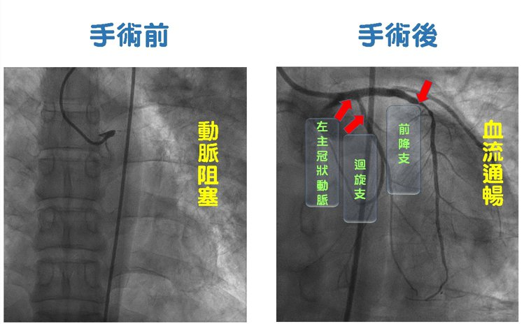 陳業鵬率領團隊施以心導管手術,緊急搶救左主冠狀動脈完全阻塞,打通前降支慢性完全阻...