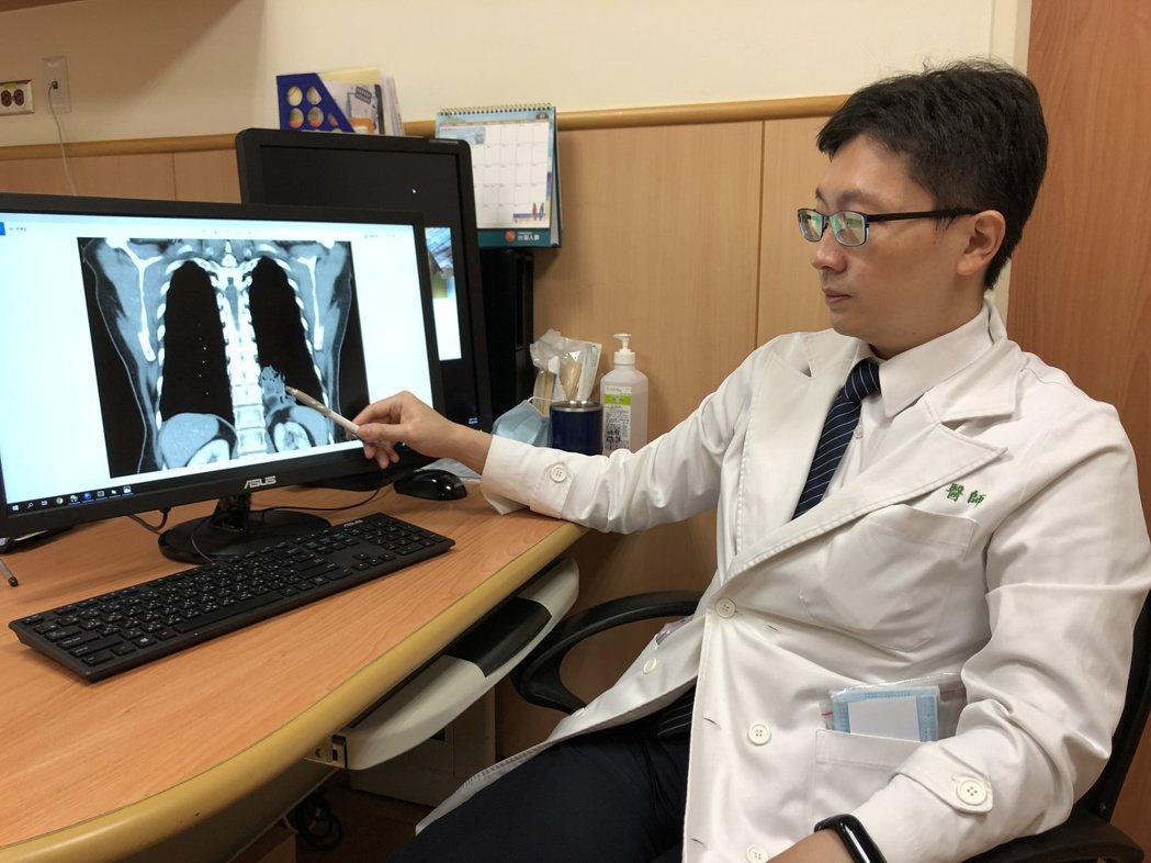 台中慈濟醫院胸腔外科醫師柯志霖表示,「游離肺」是先天肺部發育異常疾病,「肺內游離...