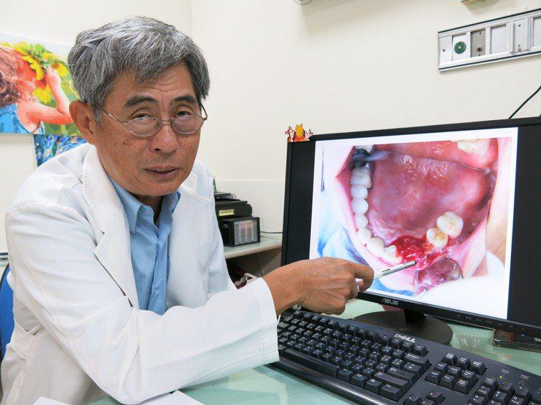 豐原醫院牙科主任黃廷芳表示,正常拔牙的患者約在1周傷口就會癒合,服用雙磷酸鹽藥物...