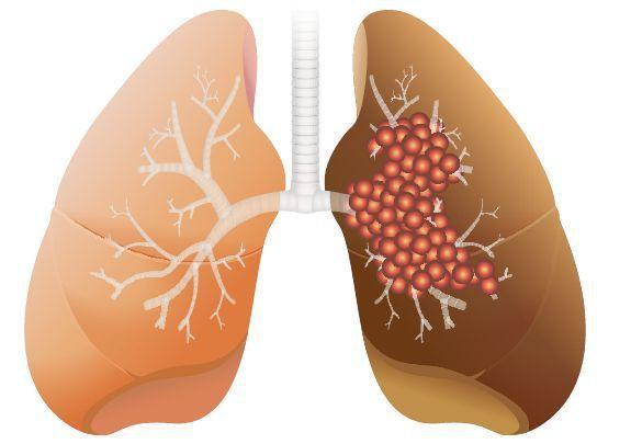 肺腺癌治療就像治療慢性病一樣,醫師可在一開始「超前部署」。圖/123RF