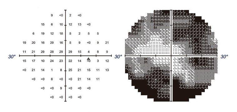 自動視野檢查儀影像 圖2:經由自動視野檢查儀,可模擬視野缺損情況,右圖黑色處即為...