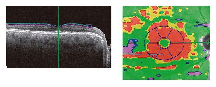 光學共軛斷層檢查 圖1:光學共軛斷層檢查原始影像(左圖),經處理後紅色處顯示潛在...