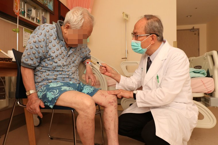 過敏免疫風濕科主任蔡肇基(右)指出,患者皆因免疫力低下引起帶狀皰疹,建議50歲以...