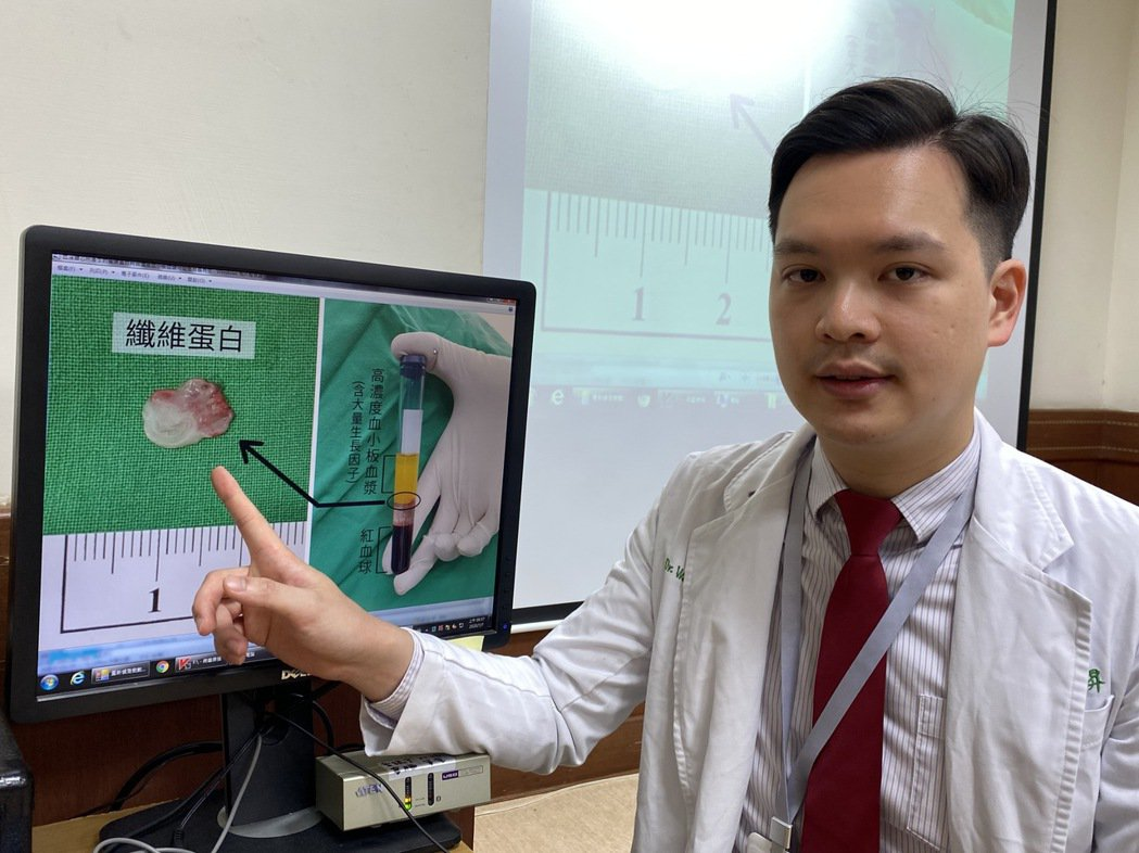 醫師溫惟昇說明,再生療法透過抽取患者10cc血液,純化出高濃度血小板血漿與纖維蛋...