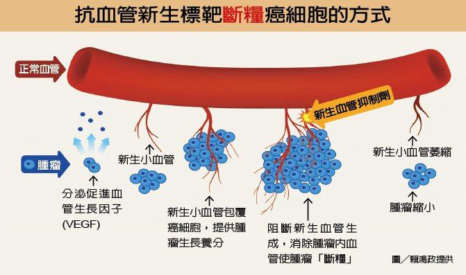 抗血管新生標靶斷糧癌細胞的方式 圖╱賴鴻政提供