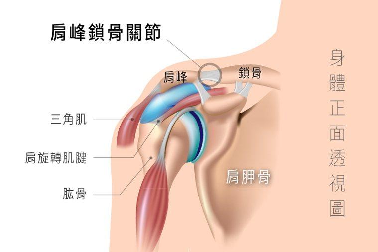 肩峰鎖骨關節若出現水平或垂直的位移,容易引發疼痛,甚至成為肩旋轉肌腱撕裂傷和五十...