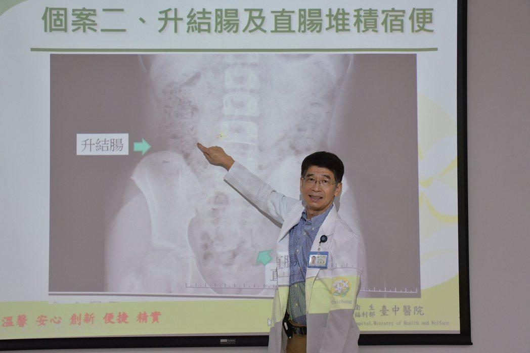 醫師陳敏恭說明,郭小妹在升結腸及直腸處推積大便。圖/衛福部台中醫院提供